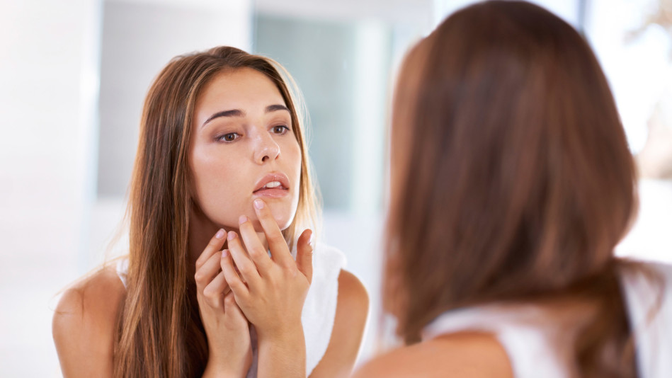 4 All-Natural Pimple Remedies That Really Work—and 4 That Don't