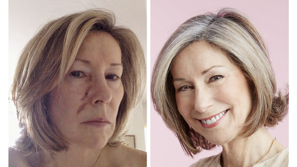 Surgery For Basal Cell Skin Cancer