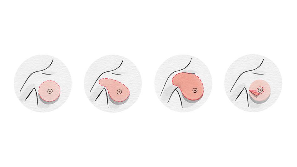 surgery scenarios