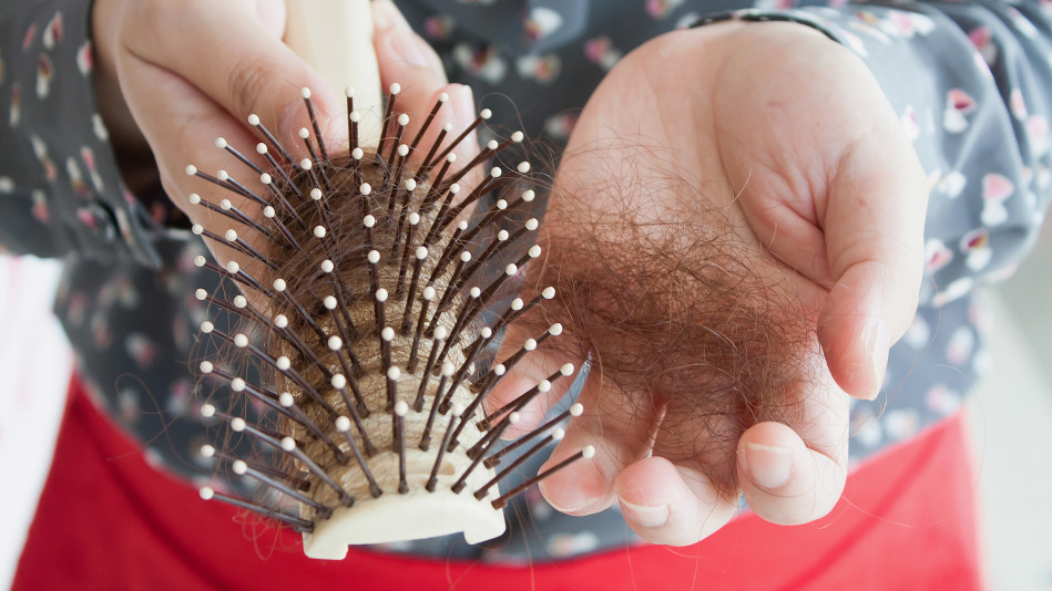 The Age-Related Causes of Hair Loss in Women