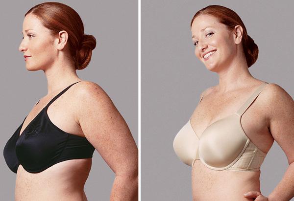 Bernadette, a minimizer bra makeover