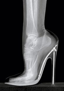 Foot in high heel x-ray