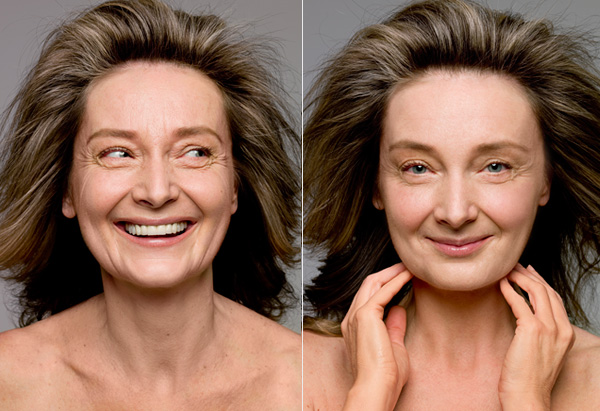 Woman's face before and after skin treatments