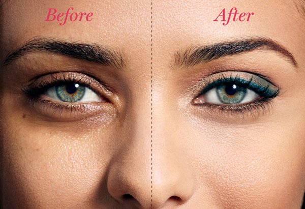 dark circles makeover