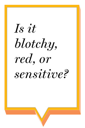 Is it blotchy, red, or sensitive?