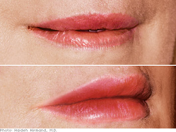 Before and after Restylane injections