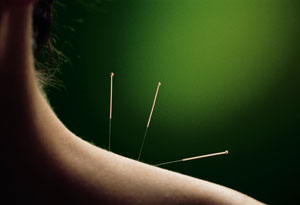 Acupuncture is an ancient medicine.