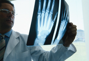 Reduce your risk for osteoporosis.