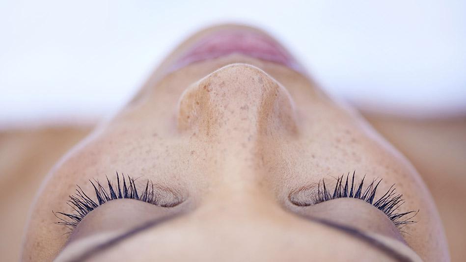 retinoids benefits