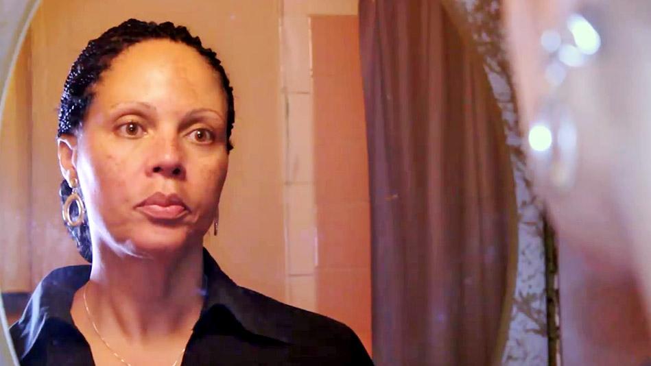 The Skin Bleaching Phenomenon - Video