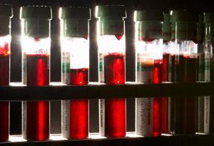 tubes of blood
