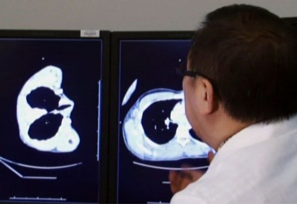 Doctor looks at CT scans