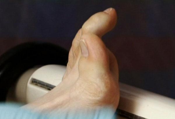 Matt Horick's toes
