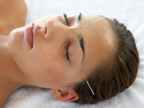 A pregnant woman uses acupuncture