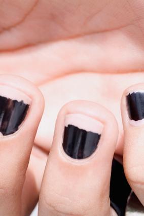 Dark, chipped nail polish