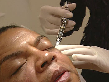 Reggie Wells gets Botox and Restylane