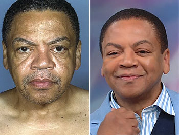 Reggie Wells before and after plastic surgery