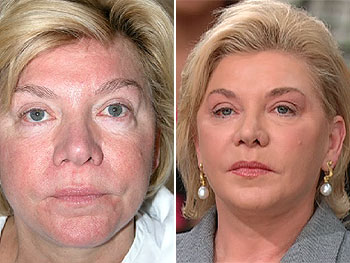 Terry before and after fat injections to remove bags under her eyes