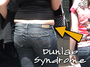 Woman with dunlap syndrome
