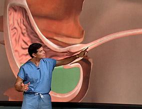 Dr. Oz illustrates what causes heartburn