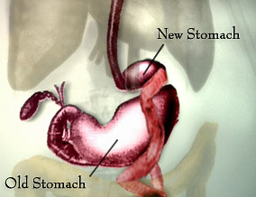 The old stomach and the new stomach