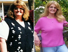 Linda before and after surgery