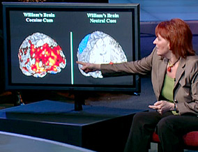 Dr. Childress shows photos of William's brain.