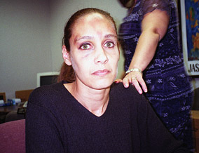Police officers photograph Susan's bruises.