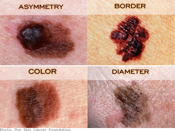 A, B, C, D of skin cancer