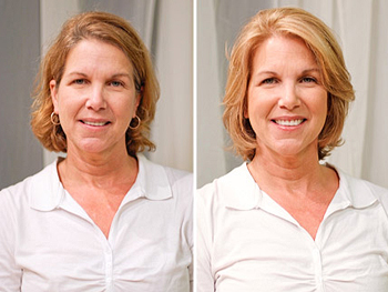 Pam before and after her makeover