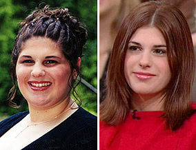 Kendall had gastric bypass surgery at age 16.