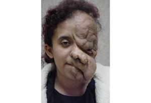Ana Rodarte's surgery
