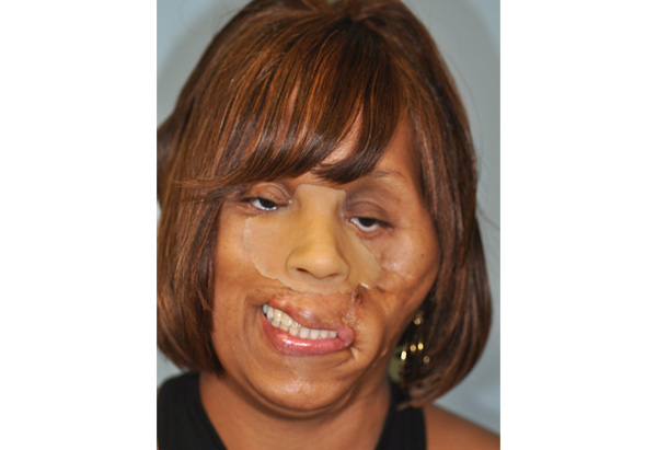 Carolyn's face in July 2009