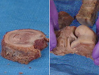 A portion of an unhealthy spine and an unhealthy knee