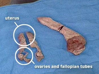 Uterus and penis