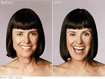 Judy Prouty, O Magazine's style director's eyebrow makeover.